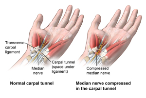 Anterior view of wrist comparing a healthy carpal tunnel with a compressed median nerve in the carpal tunnel; AMuscsk_20140312_v0_003; SOURCE: ortho_carp-tun-rel-endo_anat.ai; AMuscsk_20140312_v0_003_Layers.psd